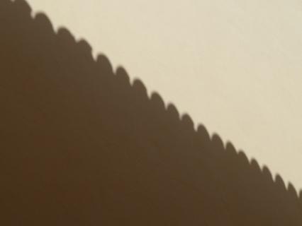 Sinus shadow